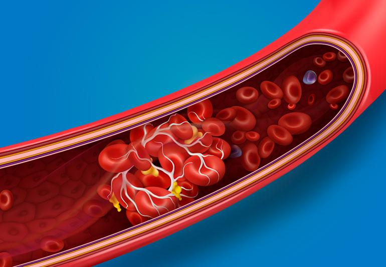 Neočkovanie AstraZenecou spôsobuje milióny úmrtí kvôli krvným zrazeninám